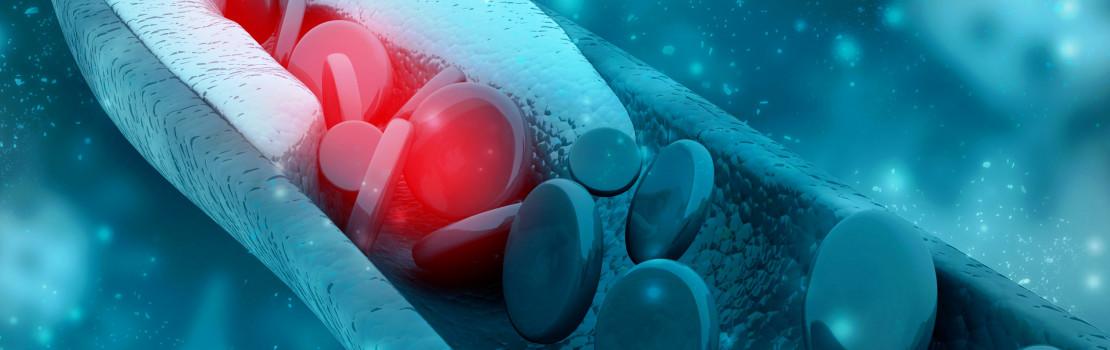 cholesterin-und-die-werte-wann-ist-es-in-der-norm